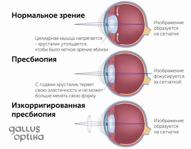 cum să înțelegeți miopia și hipermetropia sută la sută la vedere