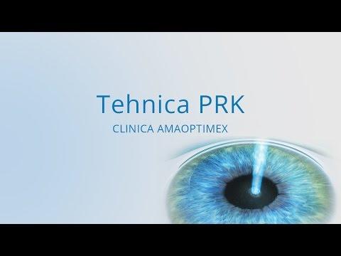 Preventia miopiei - Dr. Marioara Pop