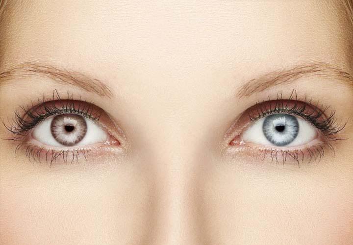 Heterocromia sau ochii de diferite culori