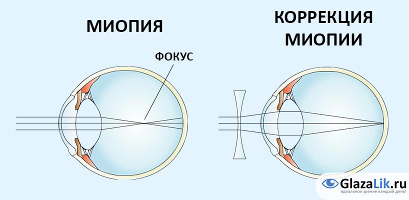 Cum să restaurați rapid vederea, Este posibilă îmbunătățirea / restabilirea vederii la domiciliu?