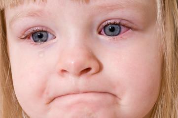 Ce probleme pot aparea la nivel ocular daca nu ne protejam ochii in sezonul estival
