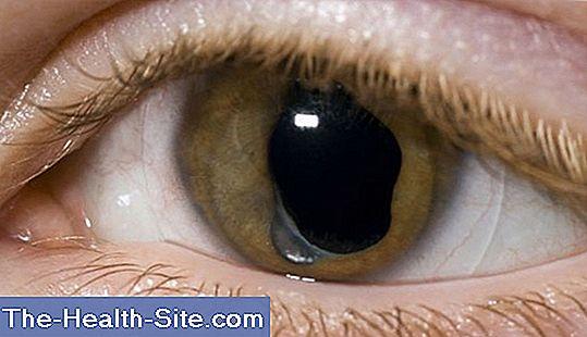glaucom de cataractă vizuală