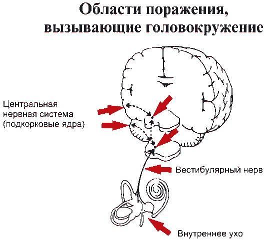 miopia și hipermetropia sunt numite simultan ajutați-vă să vă redați vederea