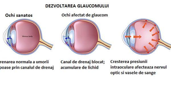 boală oculară miopie glaucom)