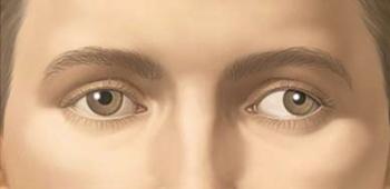 accident vascular ochi