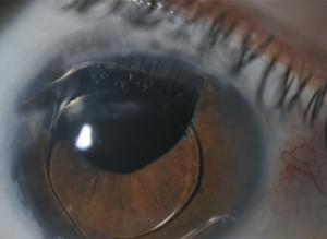 colobom oftalmologic ajutat pentru viziune