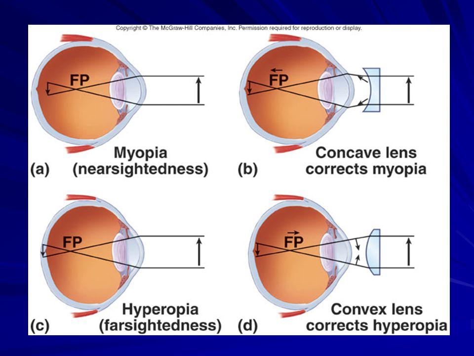 exercitarea astigmatismului restabilirea vederii