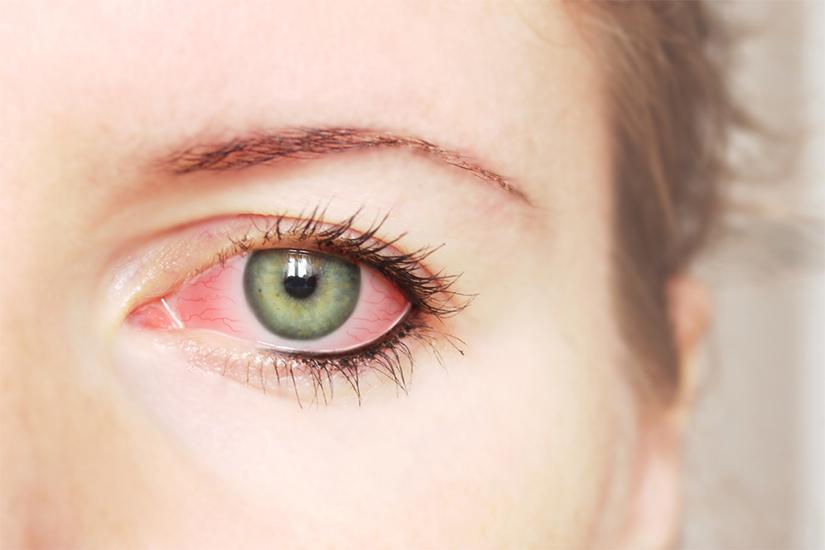 conjunctivită clamidială și vedere)