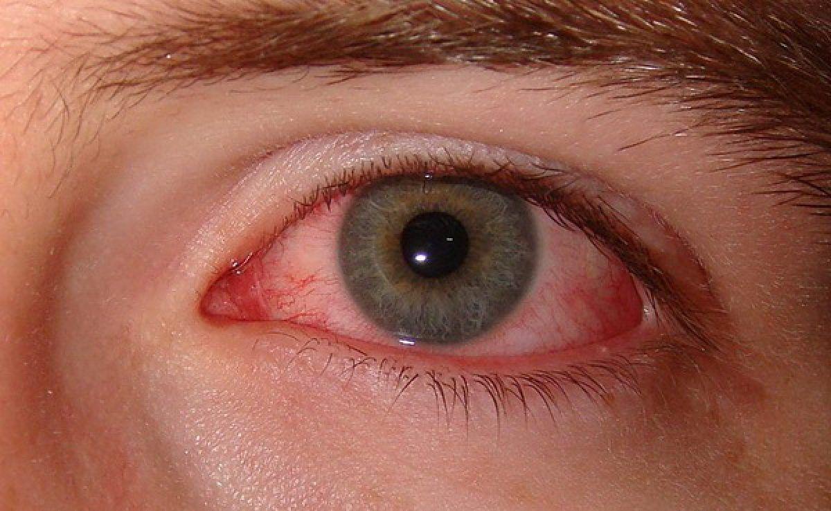 Sindromul de ochi uscat, de la mit la o problemă de sănătate publică