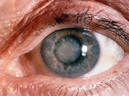 Oare pot perechea greșită de ochelari sau lumina proastă să vă afecteze vederea?