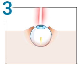 tehnica de întoarcere a vederii