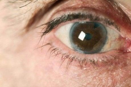 este posibil să salvați vederea cu glaucom