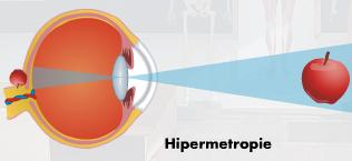 chirurgia miopiei și hipermetropiei)