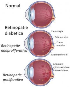 Retinopatie diabetica