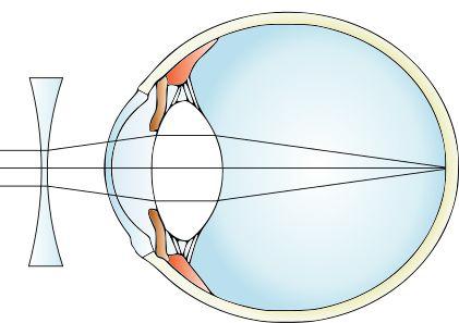 Diagrama standard de testare a ochilor - Vedere mlastinoasa