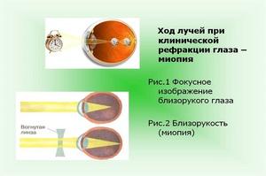 miopie midriacilă)