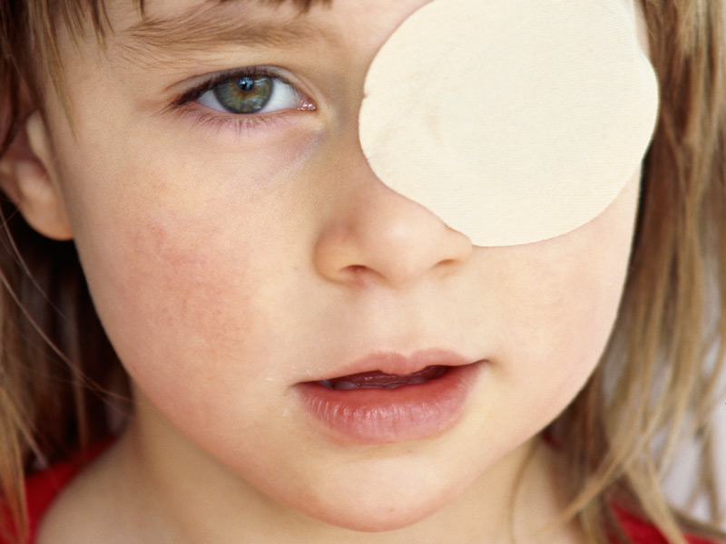 acuitatea vizuală în ambliopie