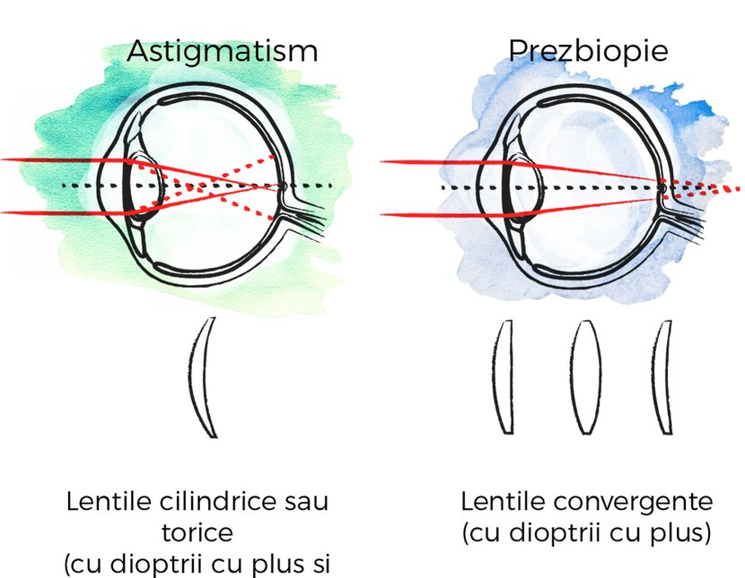 Astigmatism și diferențe de miopie