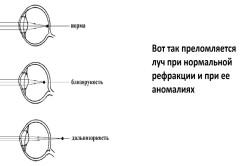 un set de exerciții pentru îmbunătățirea vederii)