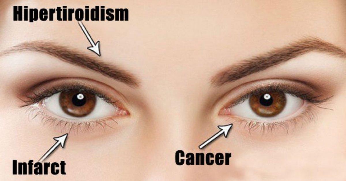 Presiunea ochilor - semne, simptome, norme și anomalii