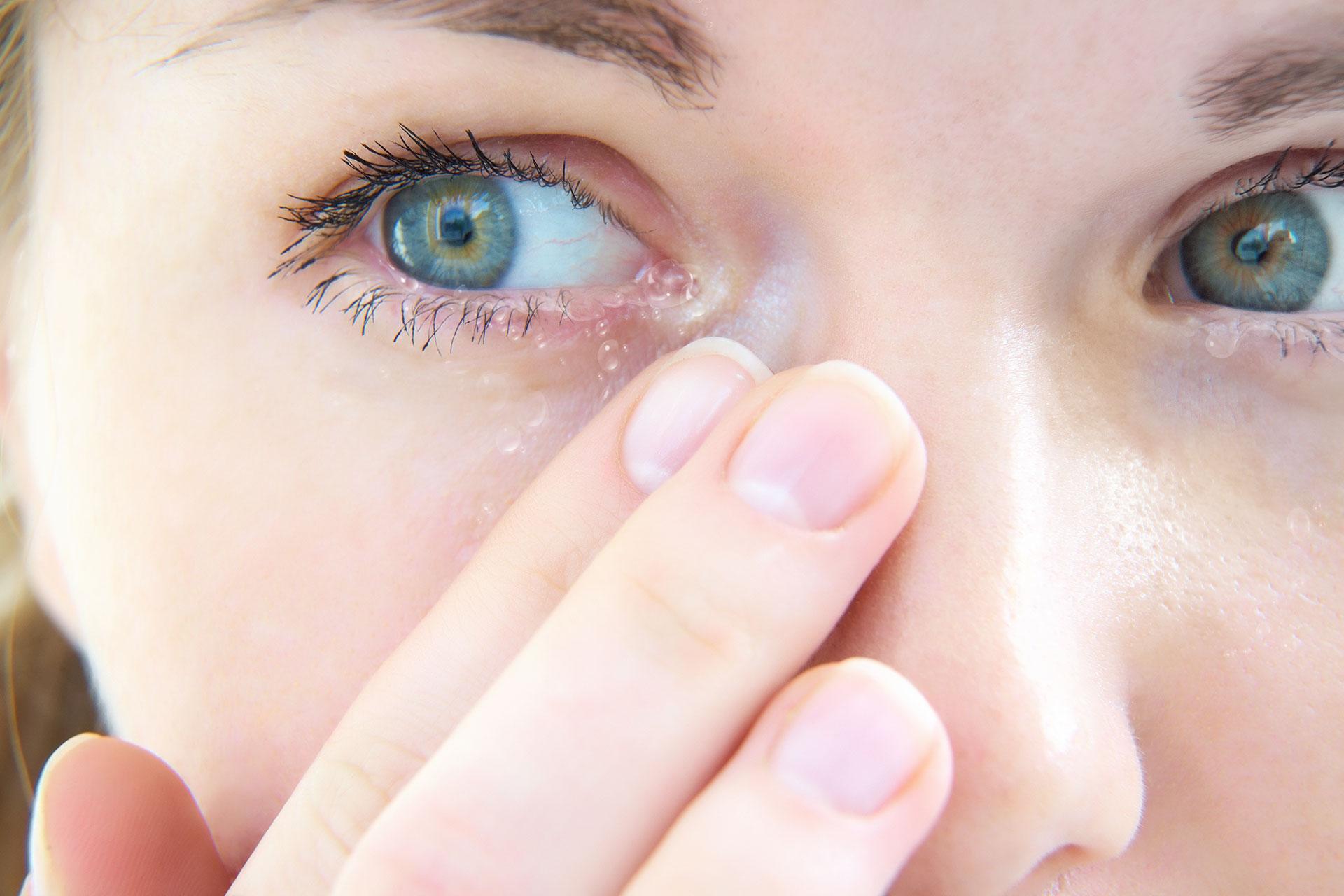 film de oftalmologie albă pe ochi