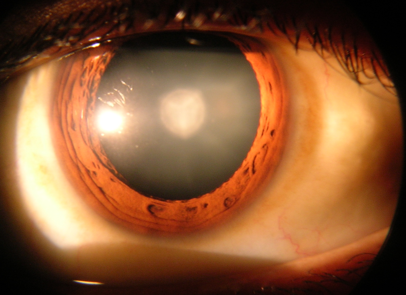 cataractă complicată de miopie viziunea 9