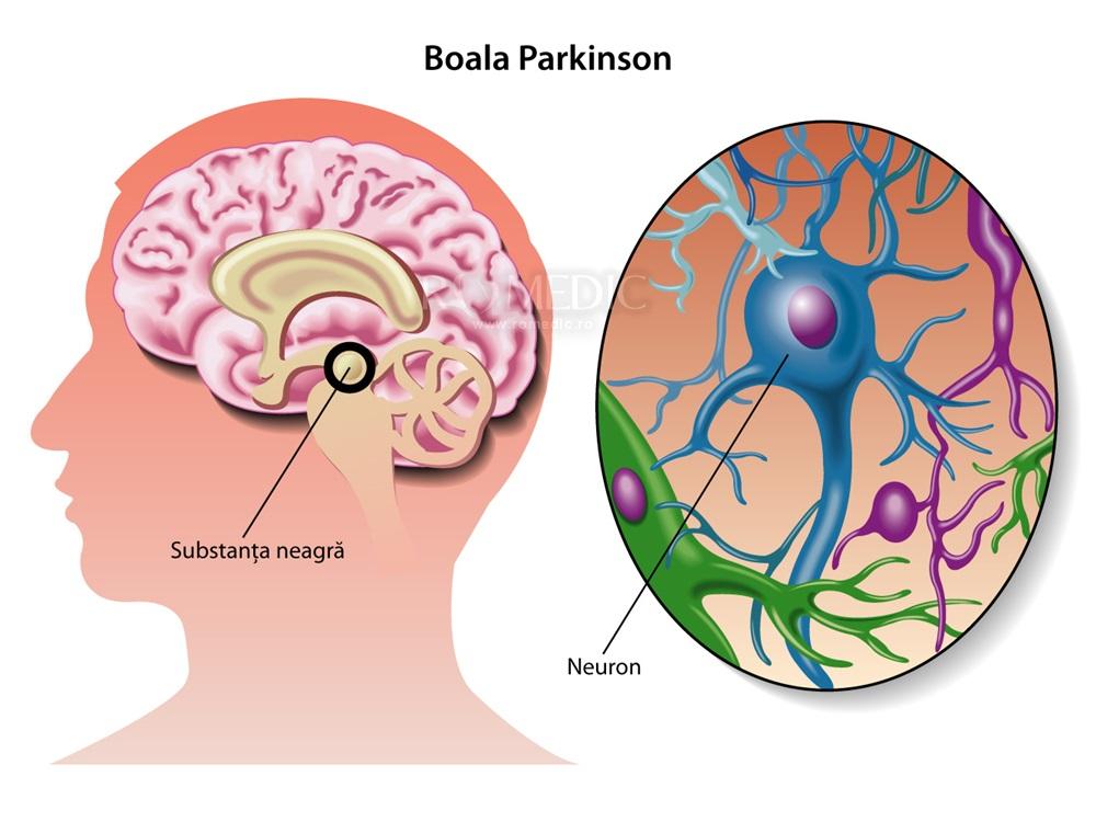 boala Parkinson și vederea