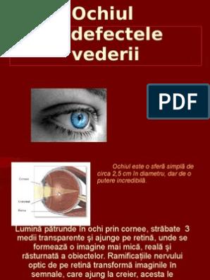 apariția unei mușchi în ochi numărul viziunii de litere și sunete