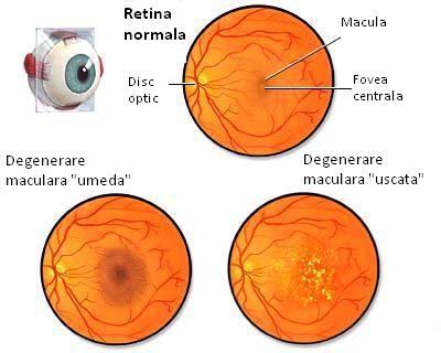 hipermetropie legată de vârstă la un ochi