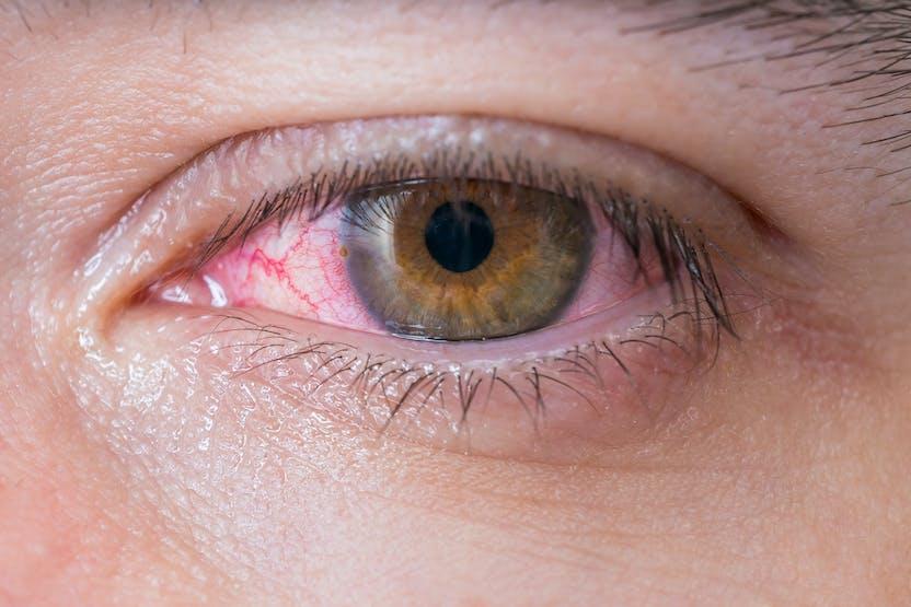 pete de vedere încețoșate în fața ochilor