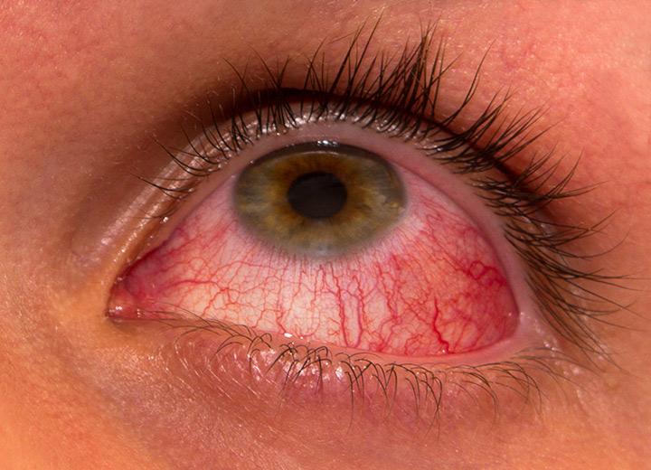 keratita oftalmologie