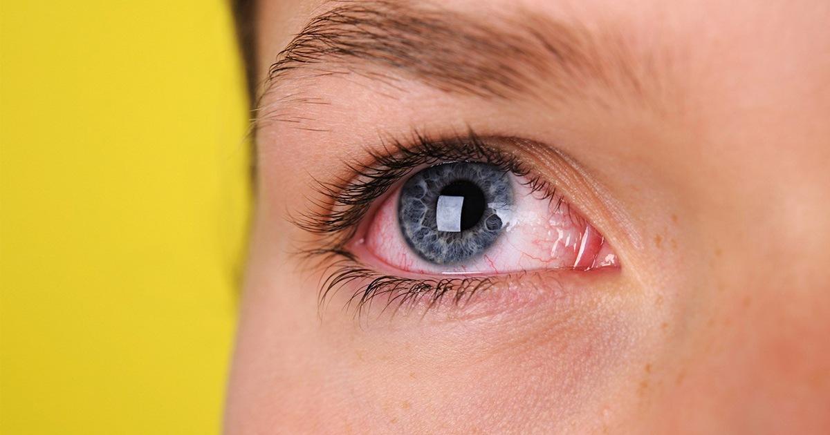 vederea se deteriorează la un ochi)