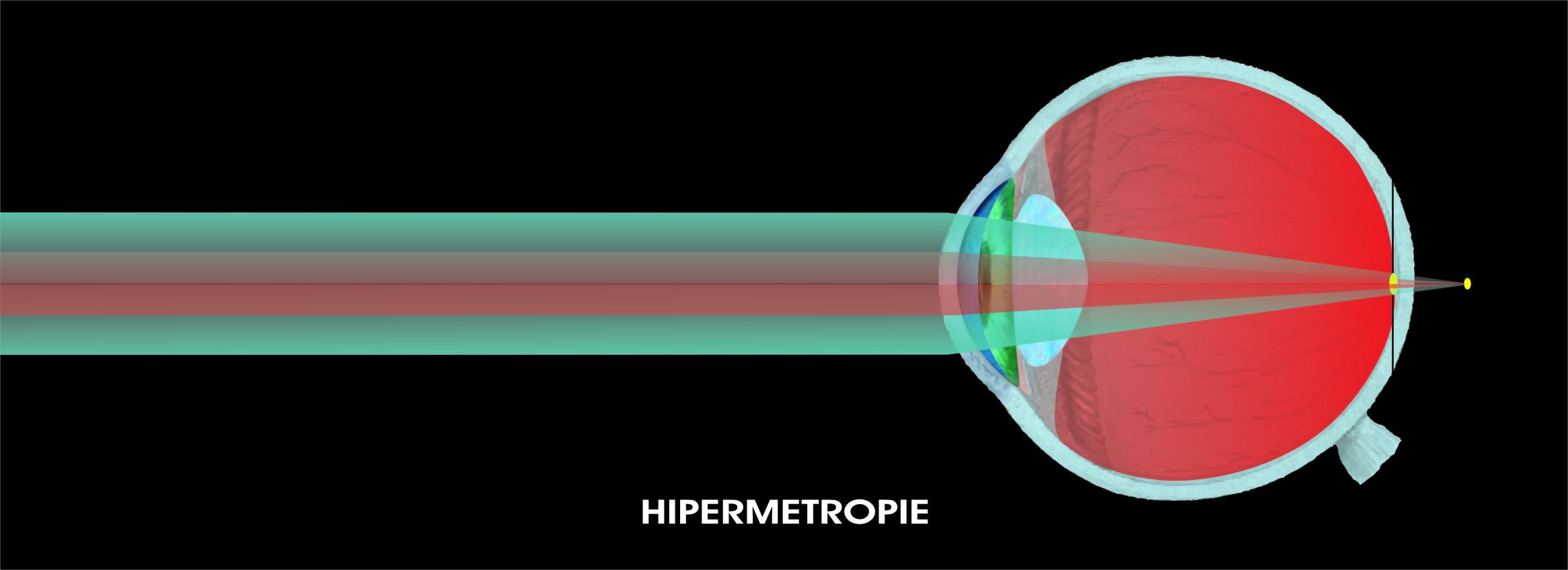 hipermetropia unei persoane este corectată folosind)