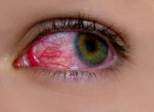 conjunctivita cronică afectează vederea