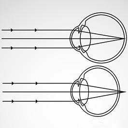 cinci exerciții pentru îmbunătățirea vederii