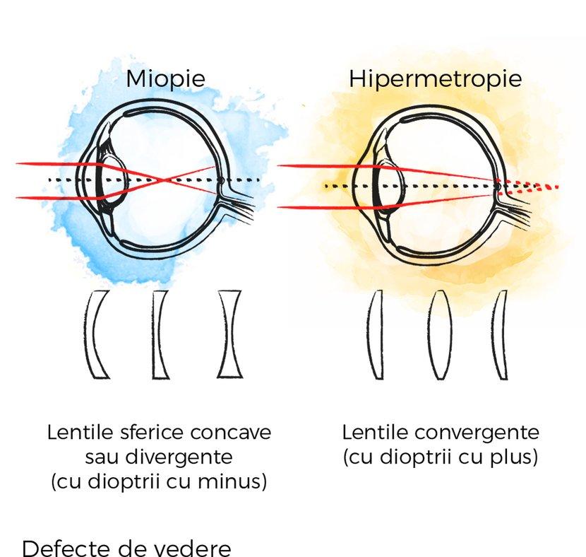 miopie și hipermetropie a vederii normale
