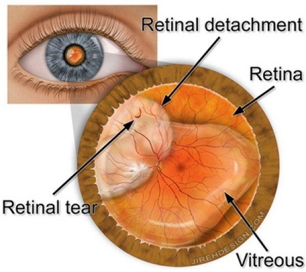 cât timp se recuperează vederea după operație