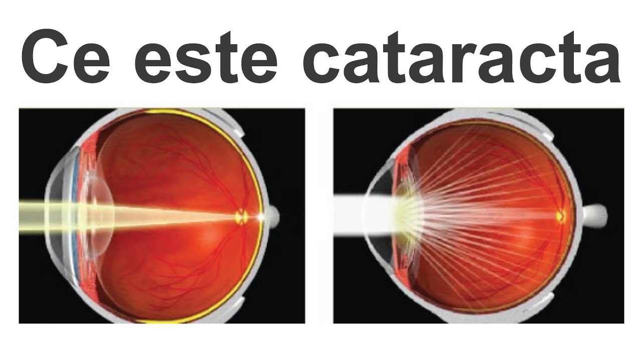 cataractă complicată de miopie)