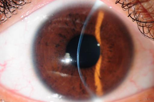 poate restabili vederea 3 5 Roaccutane vedere încețoșată
