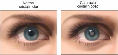 Cataracta, o boală a ochilor care afectează şi tinerii. Care sunt cauzele şi simptomele cataractei
