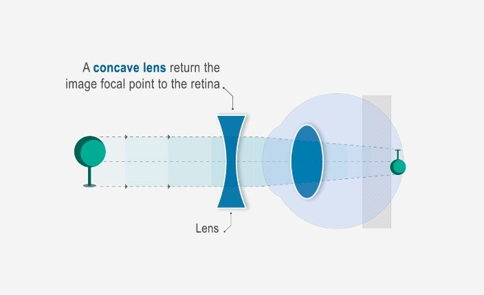 probleme de vedere legate de vârstă este posibilă restabilirea vederii dacă glaucomul