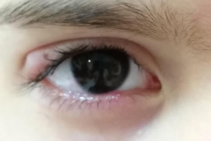 medicament boala oftalmolog chalazion