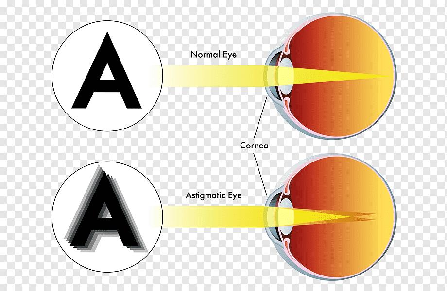 Myopia vs hyperopia vs astigmatism, Telefoane comanda
