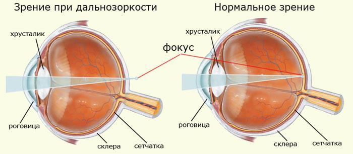 viziune umană hipermetropie și miopie)