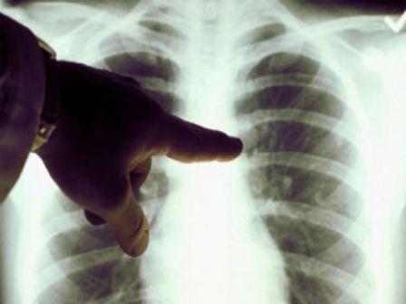 răcelile suspectate de pneumonie)