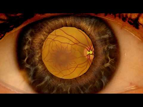 Savelyeva alla oftalmolog pentru copii)