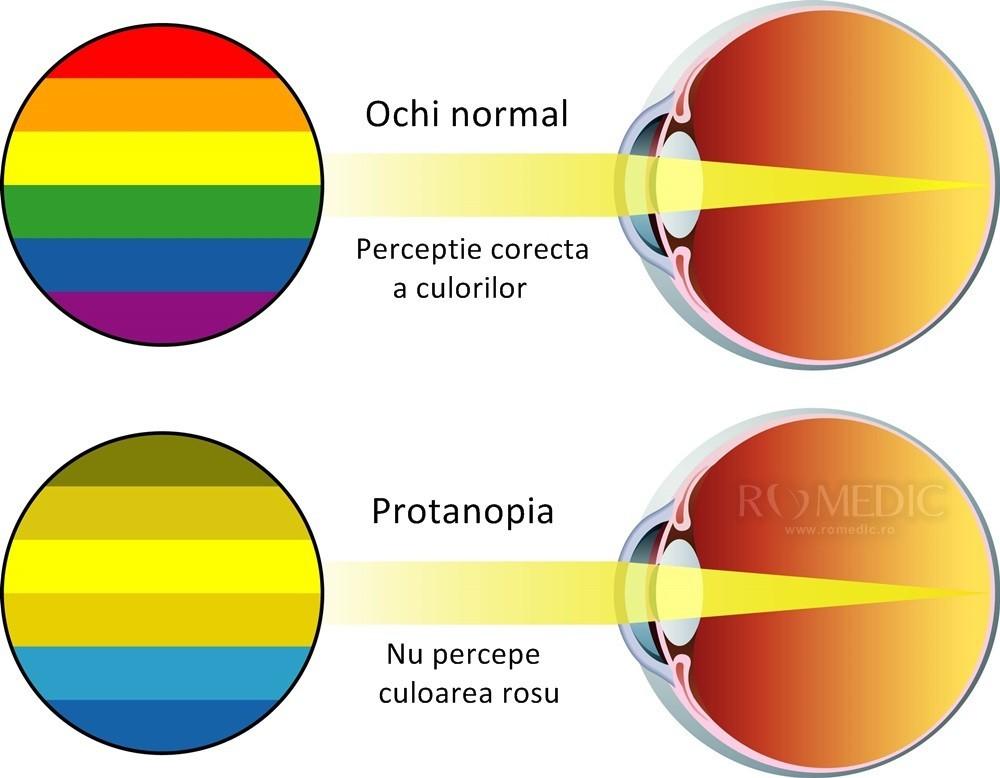 diagrama cu ochii în față