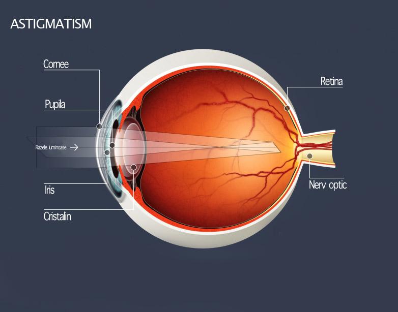 Opticlass Timisoara - Miopia, Hipermetropia, Astigmatismul, Prezbiopia