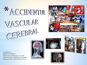 medicamente pentru afectarea vizuală de origine vasculară)