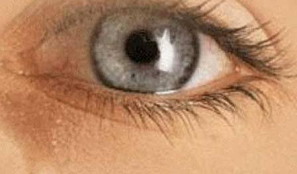 cum se ameliorează oboseala ochilor)